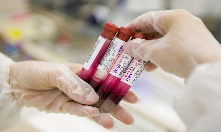 cientificos-israelies-desarrollaron-un-tratamiento-para-curar-un-tipo-de-cancer